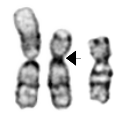 Example translocation.png