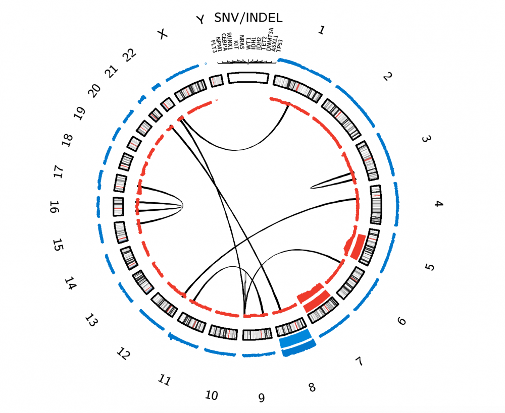 AML Circos Plot. Click on interactive content to be linked to related pages. Lines = Structural Rearrangements (between connected chromosomes); Gene Names = Gene-Specific Alterations; Red Bars = Copy Number Losses; Blue Bars = Copy Number Gains. The thickness of the red and blue bars correlates with the corresponding copy number change frequency (specific interactive copy number information in the plot.ly graph below).
